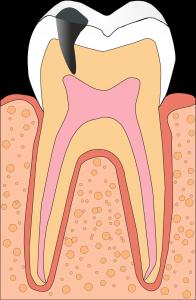 Кариозный процесс вблизи пульпы зуба